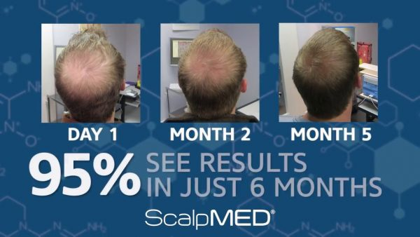 hair growth loss scalpmed effective method before after regrowth buy here